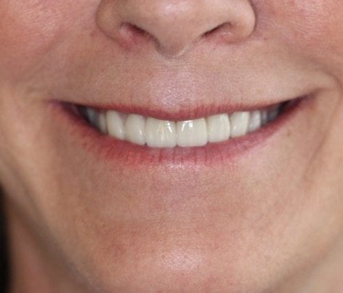 Integrated Dental Arts Smile Gallery