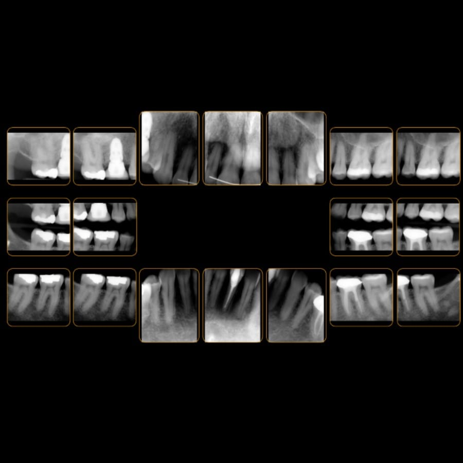 Complete Mouth Series x-rays